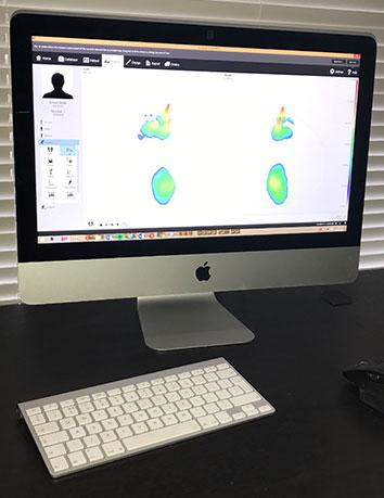 foot scan - pressure plate